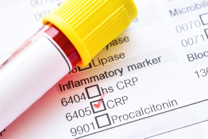 CVD Biomarker Screening Yields No Additional Information