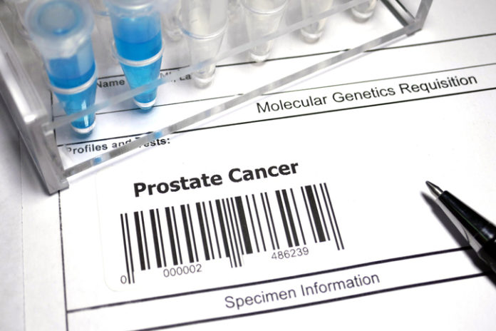 Researchers Propose A New Validated Prostate Cancer Staging System