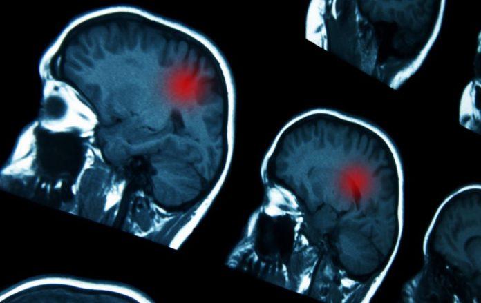 Children's Cancer Center Develops Immunotherapeutic Approach to Neuroblastoma Treatment