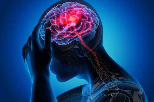Study: One in Three Adults Doesn't Know Common Stroke Symptoms