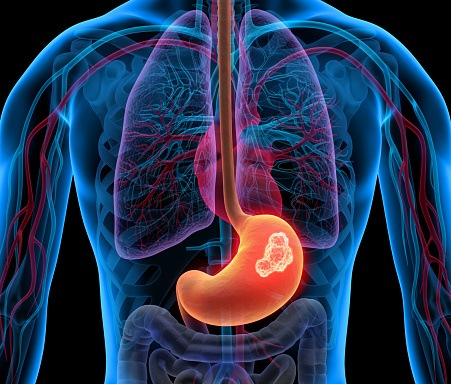 Many Younger Patients with Stomach Cancer Have a Distinct Disease