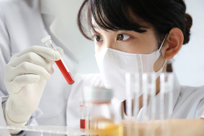 biomarkers, blood, blood test, pancreatic cancer, gene therapy