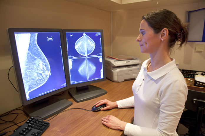 Artificial Intelligence May Help Improve Detection of Breast Cancer on Mammography