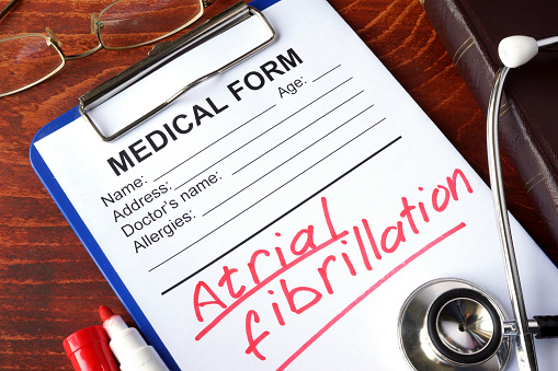 Study IDs Improved Method of AFib Detection in Stroke Patients