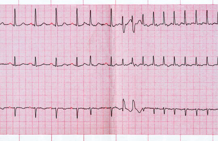 Ventricular Tachycardia Ablation at the Time of ICD Implant Shows Benefit